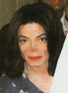 http://www.geniusmichaeljackson.com/images/vitiligo_michael8.jpg